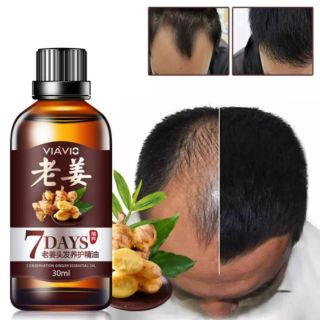 Ginger Juice Hair Growth Serum,Hair Loss Regrowth Treatments