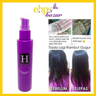 [READY STOCK] HANA ADVANCE HAIR ESSENCE | SERUM LEBAT RAMBUT | RAWAT KELEMUMUR | BUANG KUTU