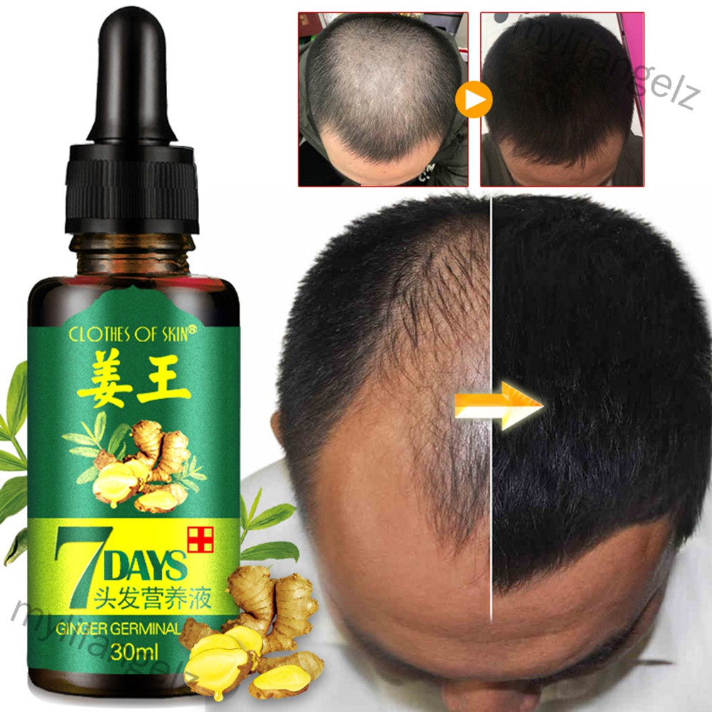 Mylilangelz 30ml Women Men Hair Care Growth Essence Liquid Fast Restoration Hair Hair Loss Nutrition Tool