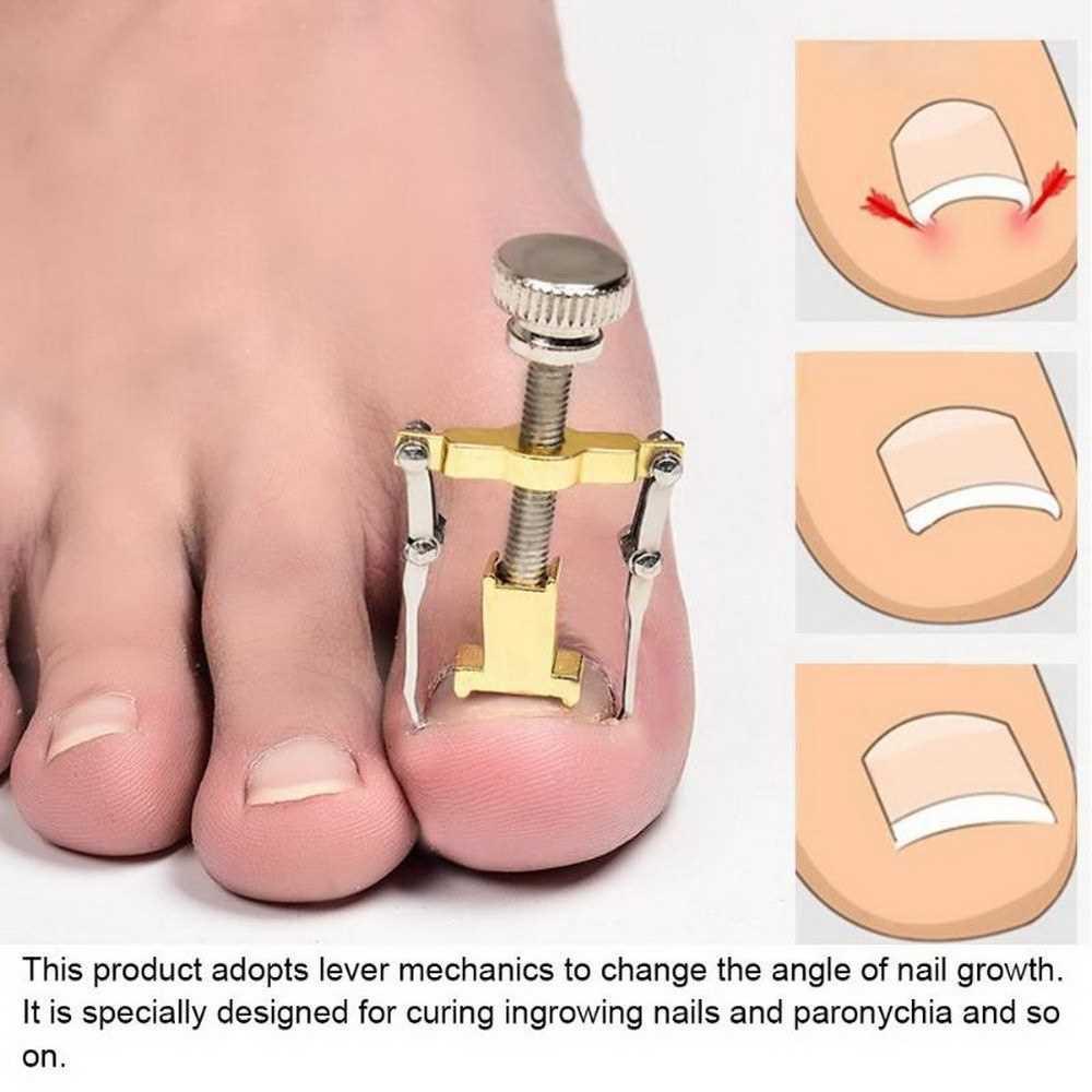Toe Nail Corrector Curler Tool Pedicure Care Tools Pembersih KUKU Pembetul- RF02