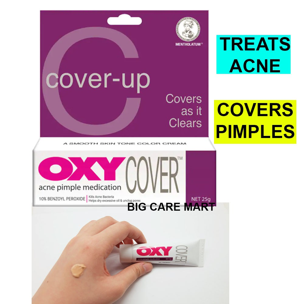OXY Cover Up Acne Pimple Medication Benzoyl Peroxide 10% 25g [Expiry 02/22]