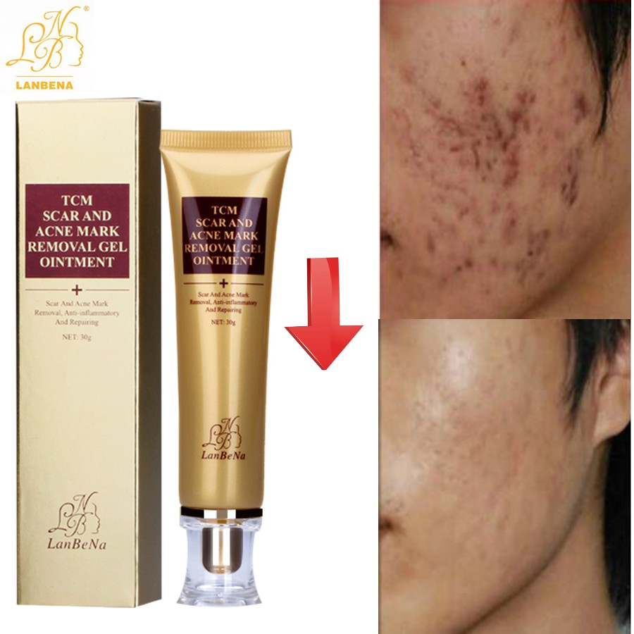 Acne & Blemish Treatments Acne Scars Removal Stretch Mark Keloid Surgery Burn Treatment Removal Gel 8g.
