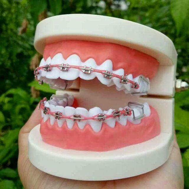 Fake braces (Clickbraces)