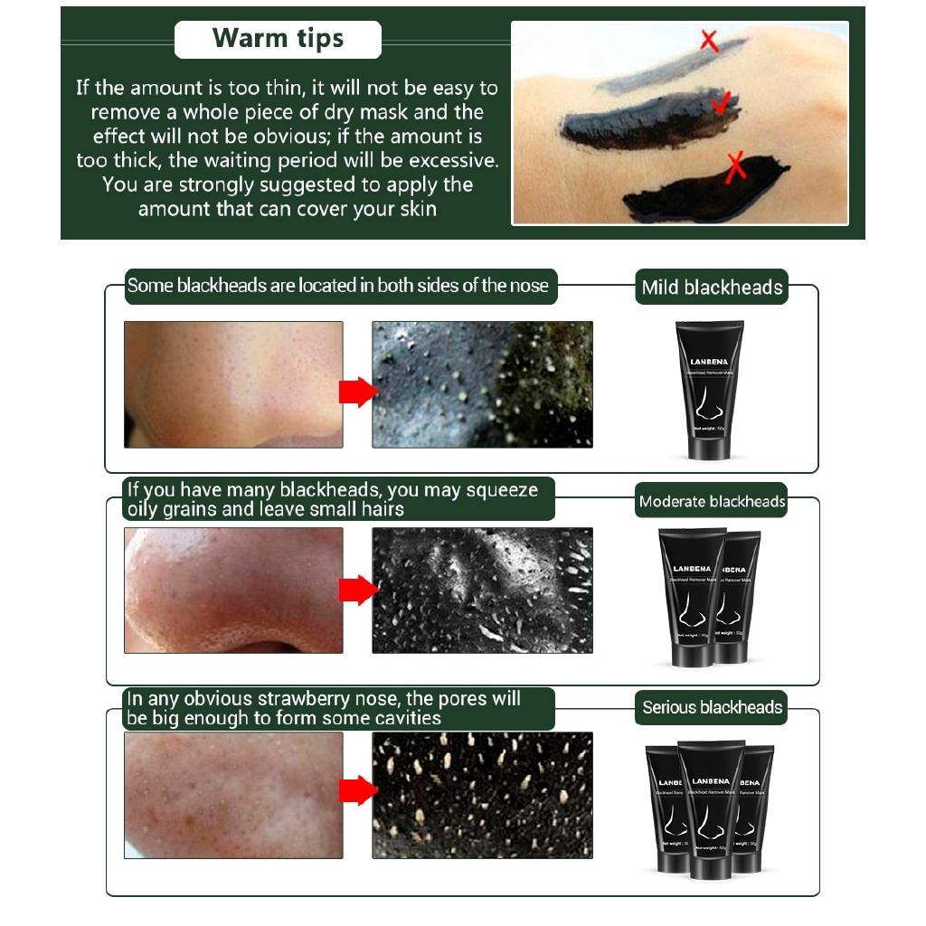 LANBENA Pro Blackheads Peel Off Nose Masks Remove Blackheads
