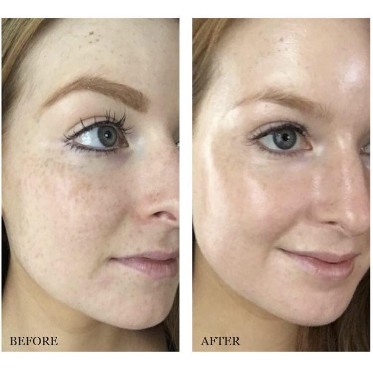 The Ordinar//y Alpha Arbutin 2% + HA 30ml Concentrated Whitening Face Serum  Remove Dark Spots Freckle Hyper Pigmentation   Shopee Malaysia