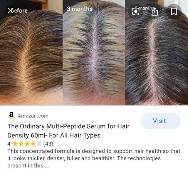 The Ordinary Multi Peptide Serum For Hair Density Growth 60ml ǔŸå'强韧浓密多肽精华trial Repack Shopee Malaysia
