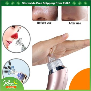 Blackhead Remover Facial Skin Care Tools Acne Vacuum Suction Pore Clean Machine
