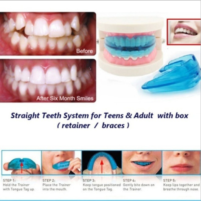 【IN-STOCK❤️】Tooth Orthodontic Silicone Alignment Braces Hygiene Dental Care  Teeth Soft