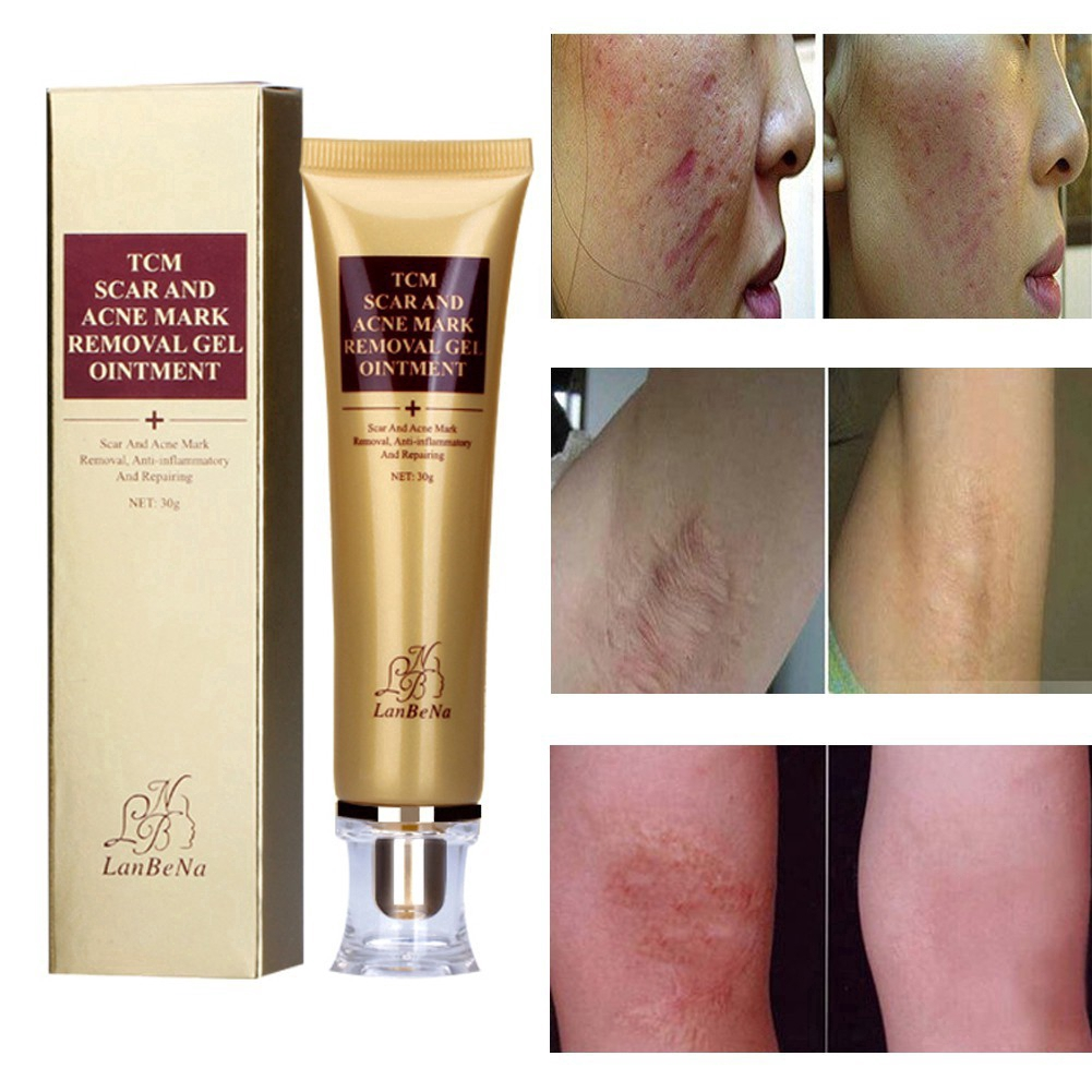 Health & Beauty Acne Scars Removal Stretch Mark Keloid Surgery Burn Treatment Removal Gel 8g.