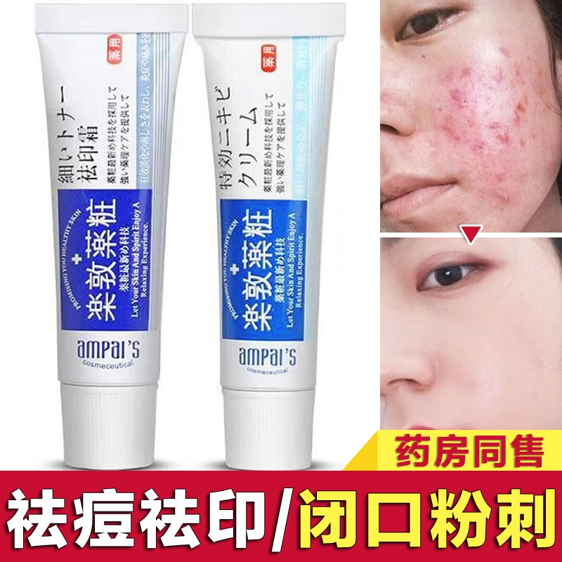 Authentic Closed Acne Female Male Acne Acne Acne To India Acne Cream Fusidic Acid Coated Ointment Artifact Pit Shopee Malaysia