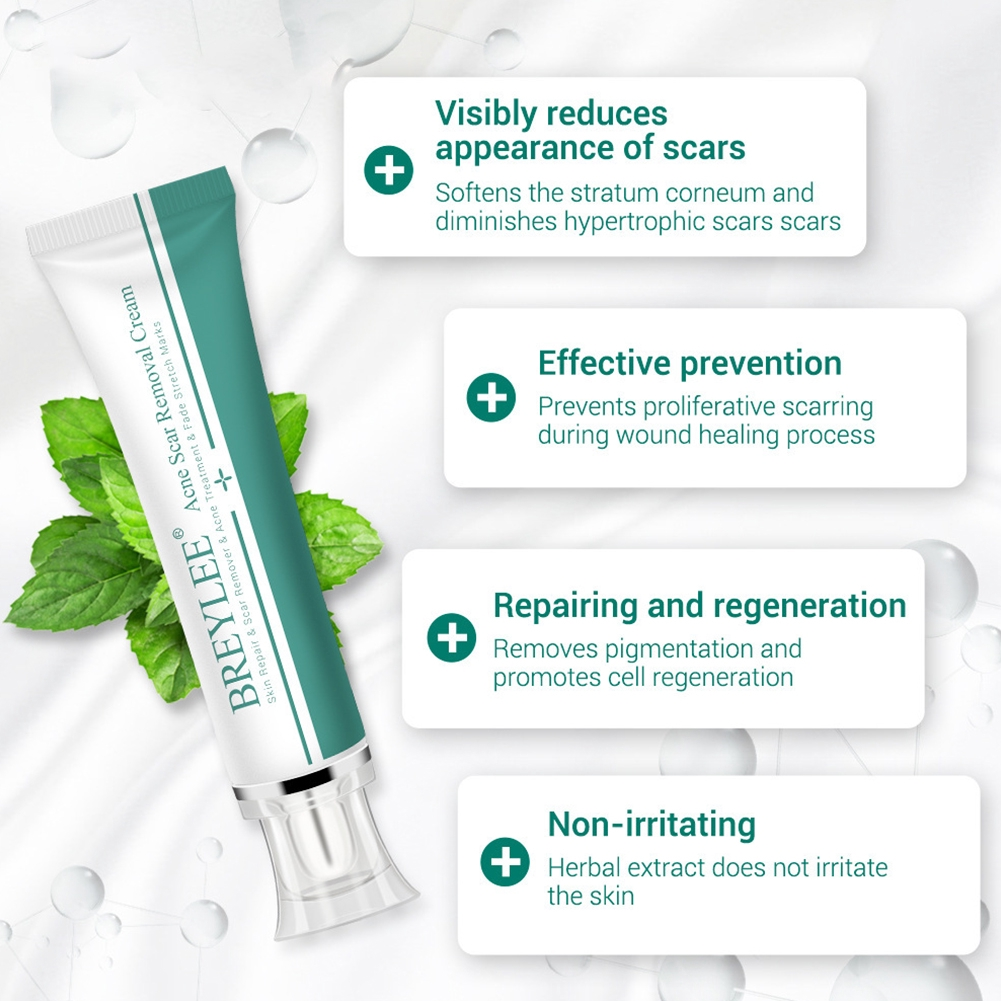 Skin Care Pigmentation Herbal Acne Treatment Whitening For Face Spots Body  Shrink Pores Desalting Scar Removal Cream