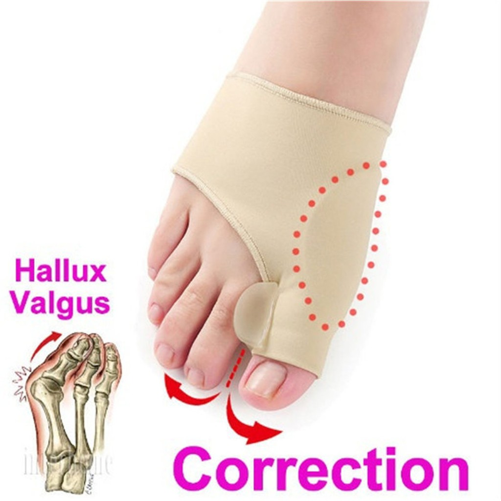 03951920fb 〖HWS❤〗 1 Pair Hallux Valgus Corrector Orthotics Bone Thumb Adjuster  Correction Pedicure Bu | Shopee Malaysia