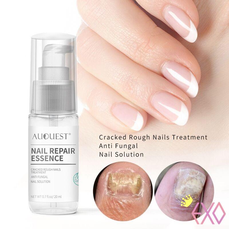LANBENA Original Nail Repair Essence Serum Fungal Nail Treatment ...