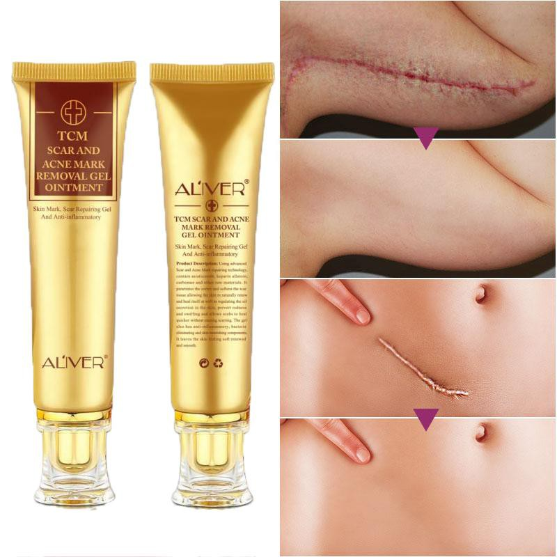 Aliver Scar Cream Acne Scar Removal Cream Skin Repair Face Cream