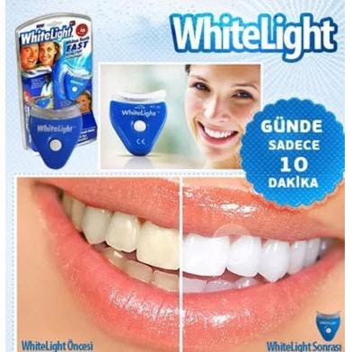 -MALAYSIA READY STOCK- White Light Tooth Teeth Whitening Full Set Gigi Putih Protect Teeth Whitening HM03