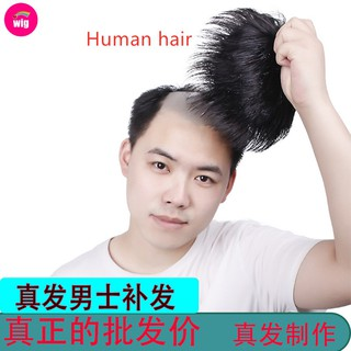 Hair Cover Male Short Hair Wig Man Wig Toupee Wig Men Short Human Wig Male Wig Cover White Hair Cover Baldness Shopee Malaysia