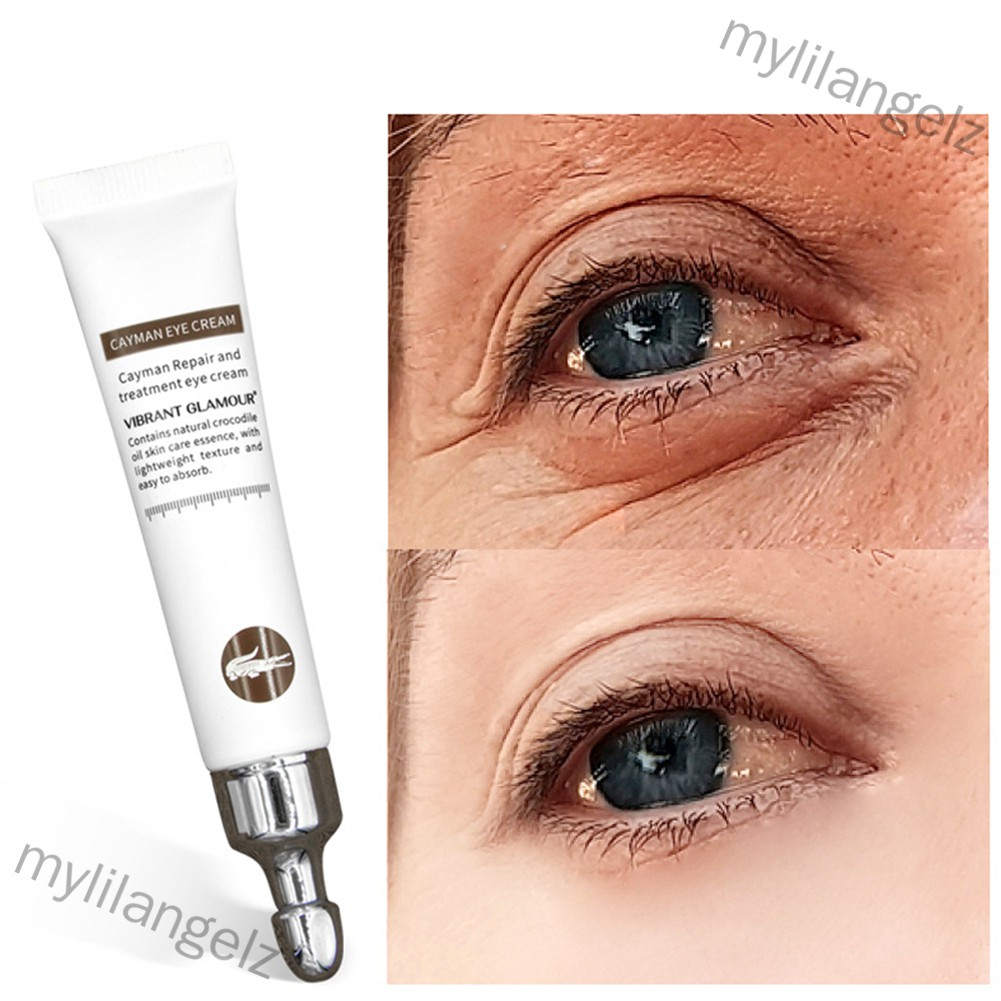 Mylilangelz Anti-Wrinkle Anti-aging Remover Dark Circles Eye Care Against Puffiness Bags Eye Cream
