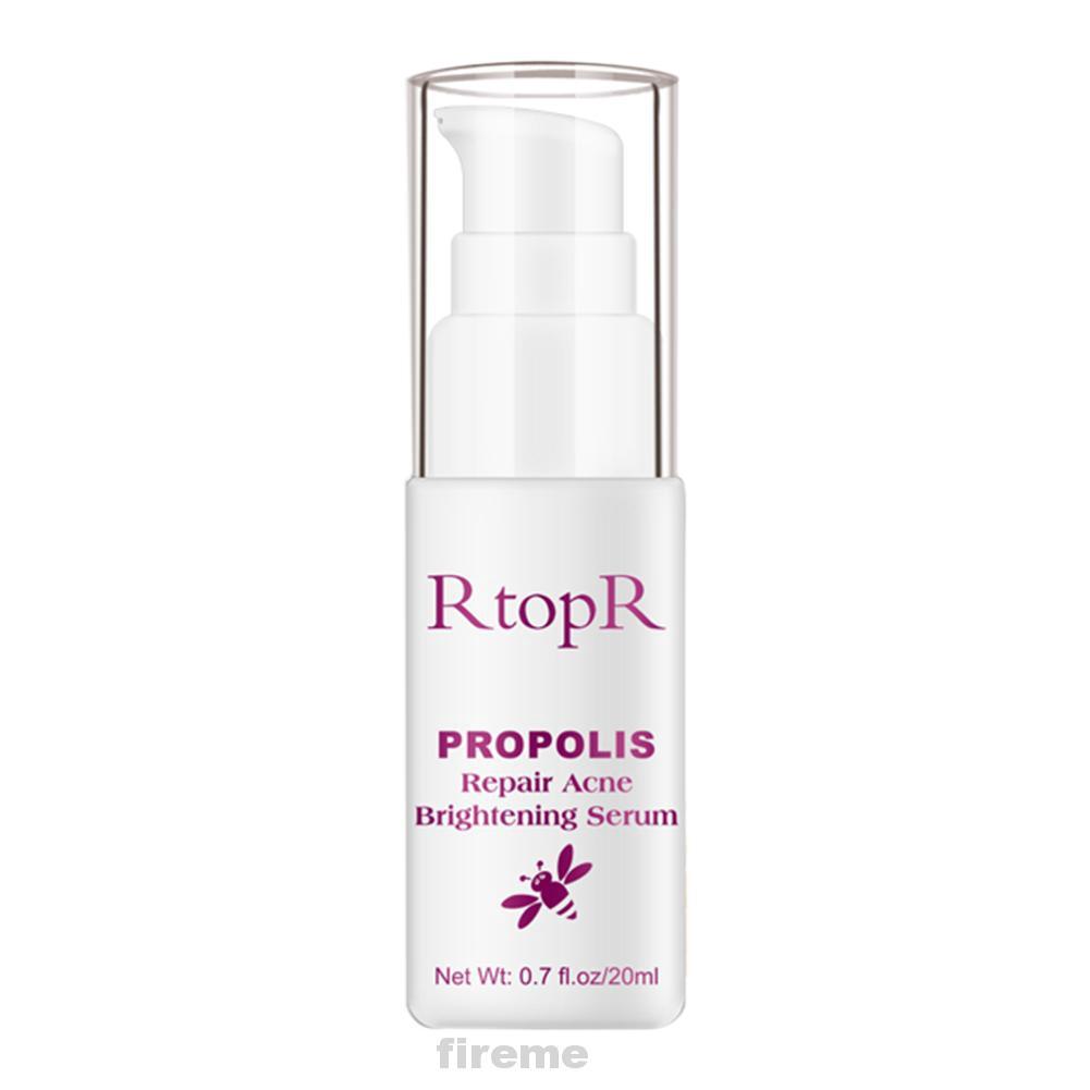 Brightening Cleaning Oil Control Repair Pimple Skin Care Acne Treatment Serum