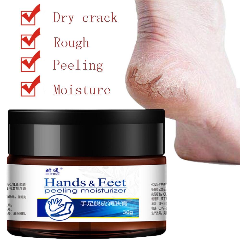 Hand And Foot Moisturizing Cream To Prevent Dry Cracking Feet Heel SkinHand