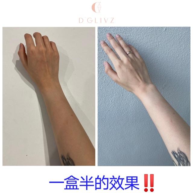【Ready Stock 现货】💯D'GLIVZ内服美白产品🍑白娃娃 SnowBeBe 🍑三个一个疗程✨健康喝出白、亮、滑🔥