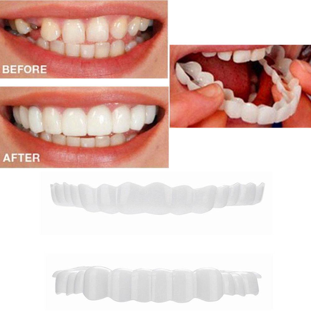 qibook-Perfect Smile Comfort Fit Flex White Fake Teeth Top