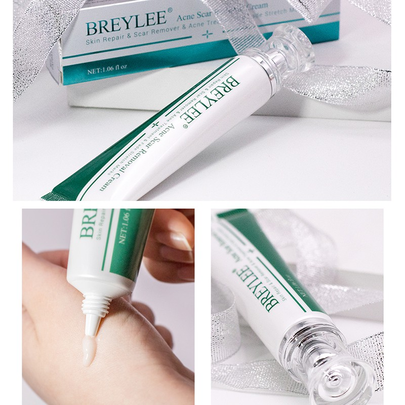 Breylee Acne Scar Removal Cream 30g Face Cream Skin Repair Scar