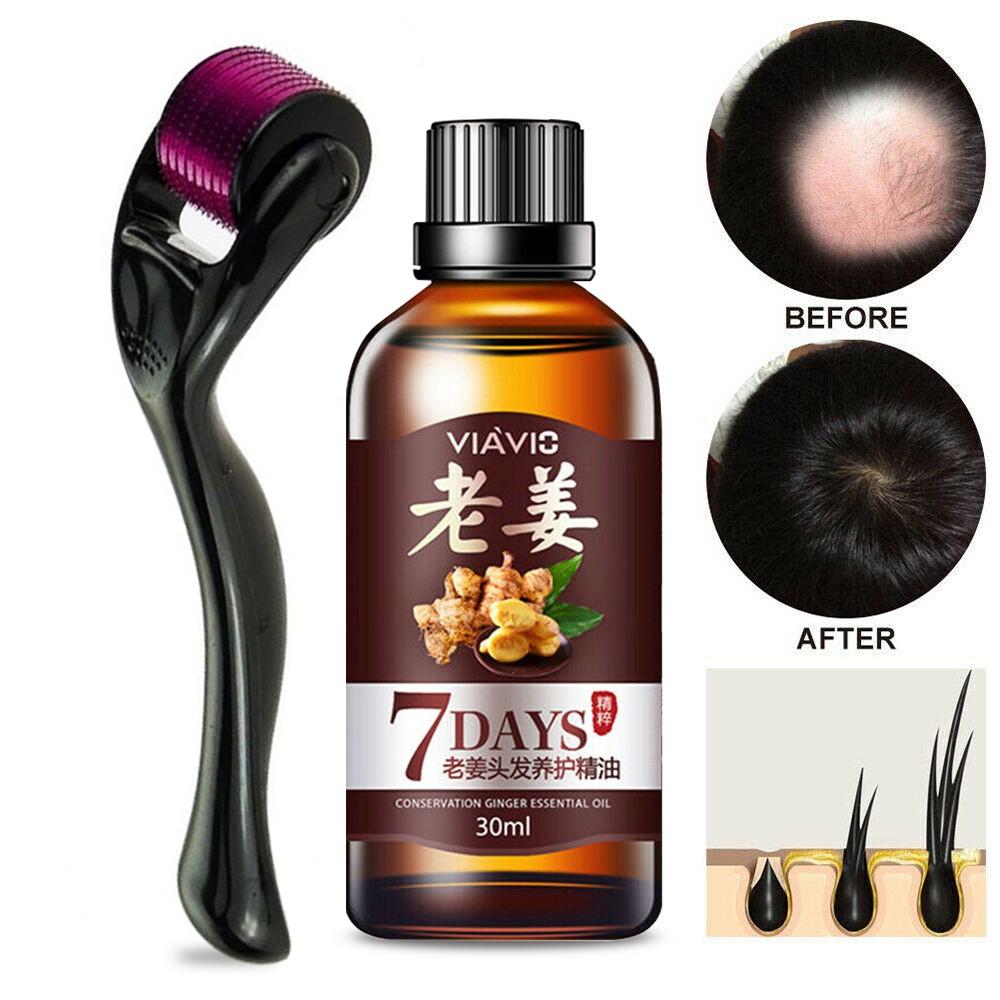 30ml Natural Ingredients Hair Care Hair Growth Oil Ginger Serum 0 5mm Derma Micro Needle Titanium Roller Shopee Malaysia