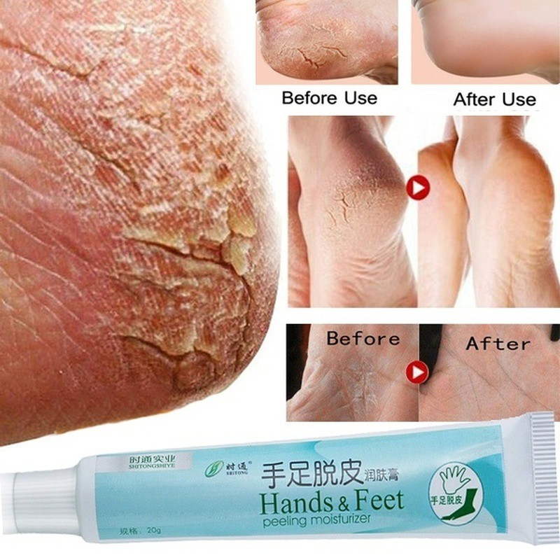 best sell huge sale attractive price Natural Cream Skin Cracked Heel Cream Essence Suitable for Rough Dry  Cracked Hand / Heel Peeling Dry and Feet Body Cream