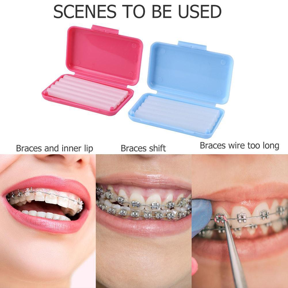 ✭ Superior Dental Orthodontics Ortho Wax Braces Bracket Gum Irritation Oral