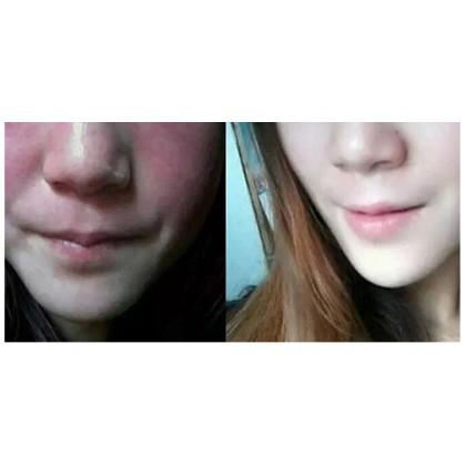 CrazySkin_KOREA_Propolis Pore Sebum Care Soap Bubble Acne