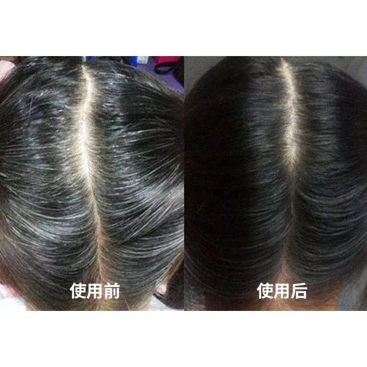 Citi Fashion Complete Hair Tonic Set (HALAL)