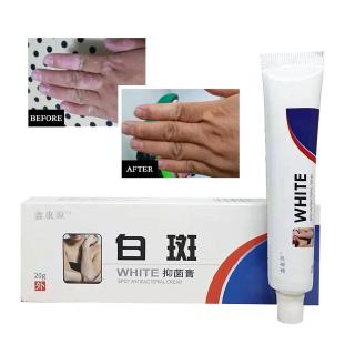 Chinese Treat White Spots Promote Melanin Cream Vitiligo Treatment Skin Lek P5z8 Shopee Malaysia