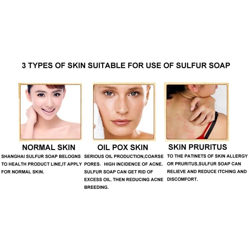 Fungal Acne Mite Soap Fungus Eczema Bacteria 1* Skin Sulfur