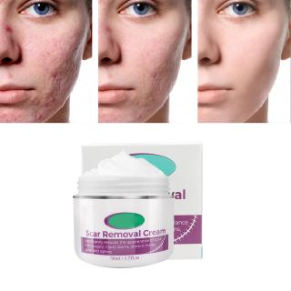 50ml Scar Removal Cream For Old Scars Stretch Mark Removal Cream For Men And Women Shopee Malaysia