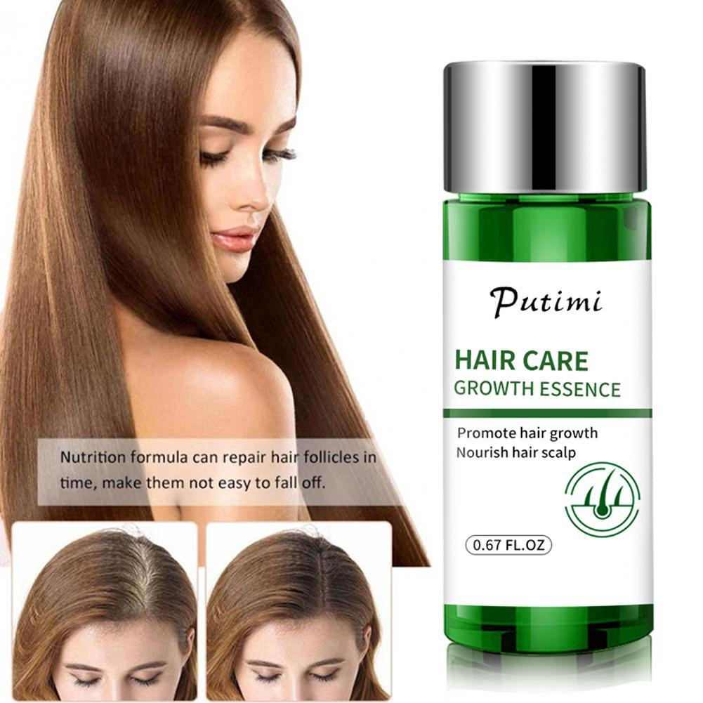 20ml Sevich Fast Anti Hair Loss Products Hair Growth Essence Women For Men Oil P3s2 Shopee Malaysia