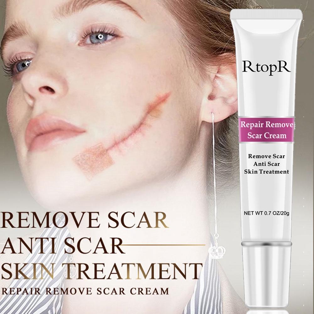 Rtopr Scar Cream Repair Scar Cream Removal Scars For Face Body